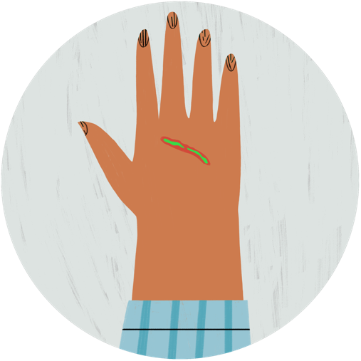 Illustration of a hand with a green line symbolizing an infection