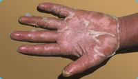 Erythrodermic psoriasis on hand