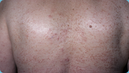 Guttate psoriasis on back