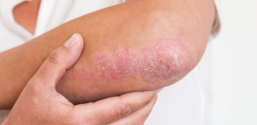 Psoriasis on elbows