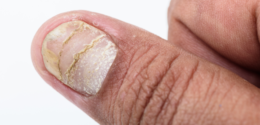 Psoriasis on nails