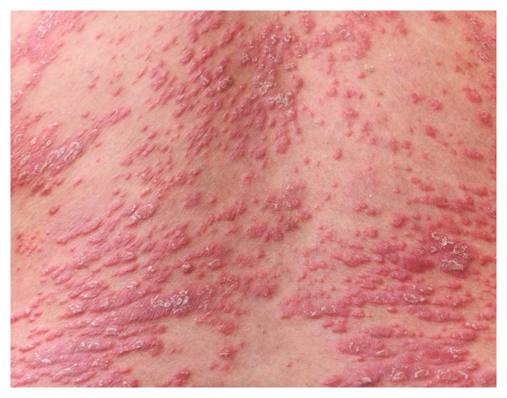 Psoriasis looks like raised, red, inflamed lesions