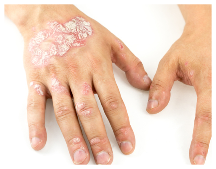Psoriasis looks like silvery, scaly plaques