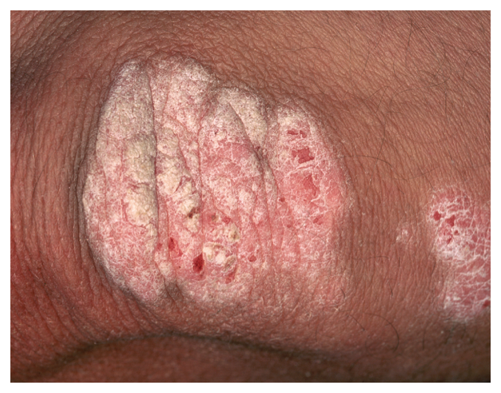 Psoriasis looks like dry skin that may crack and bleed