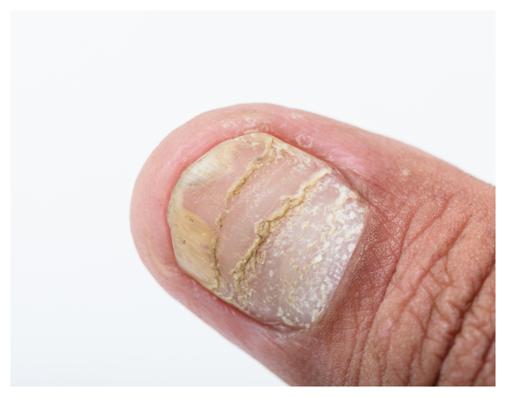 Psoriasis looks like pitted nails or separation from nail bed