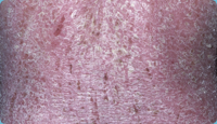 Erythrodermic psoriasis on body