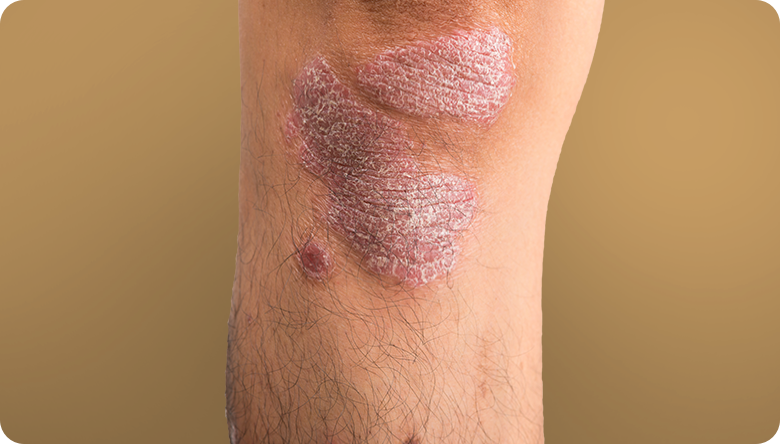 Plaque psoriasis on knee