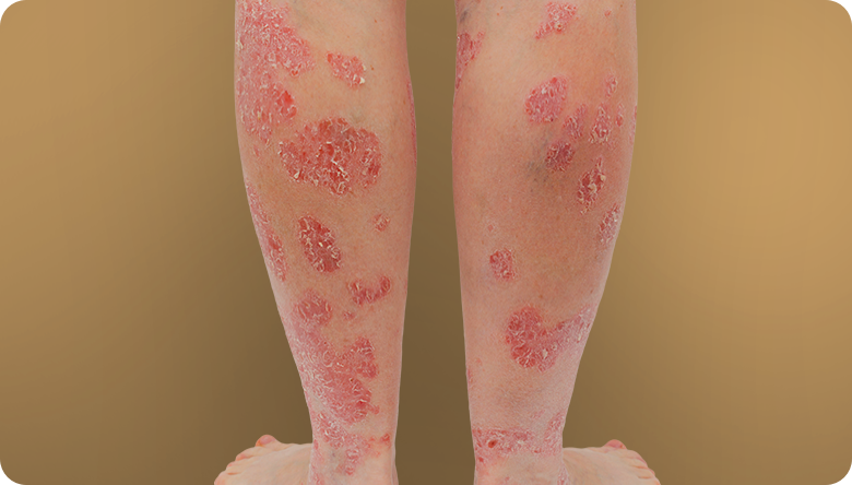 Plaque psoriasis on legs