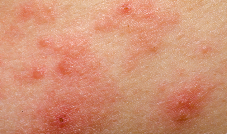 Close-up of eczema