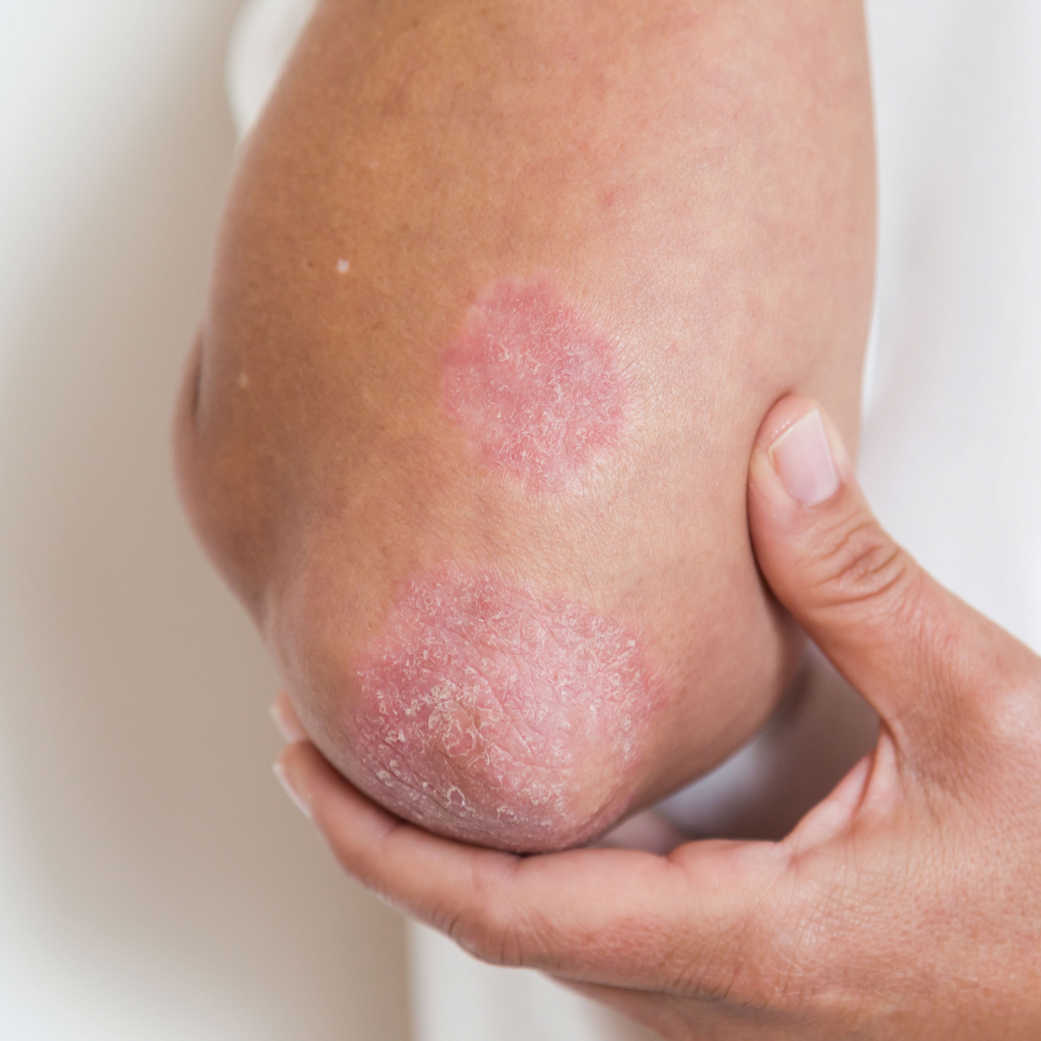 Psoriasis plaque on elbow